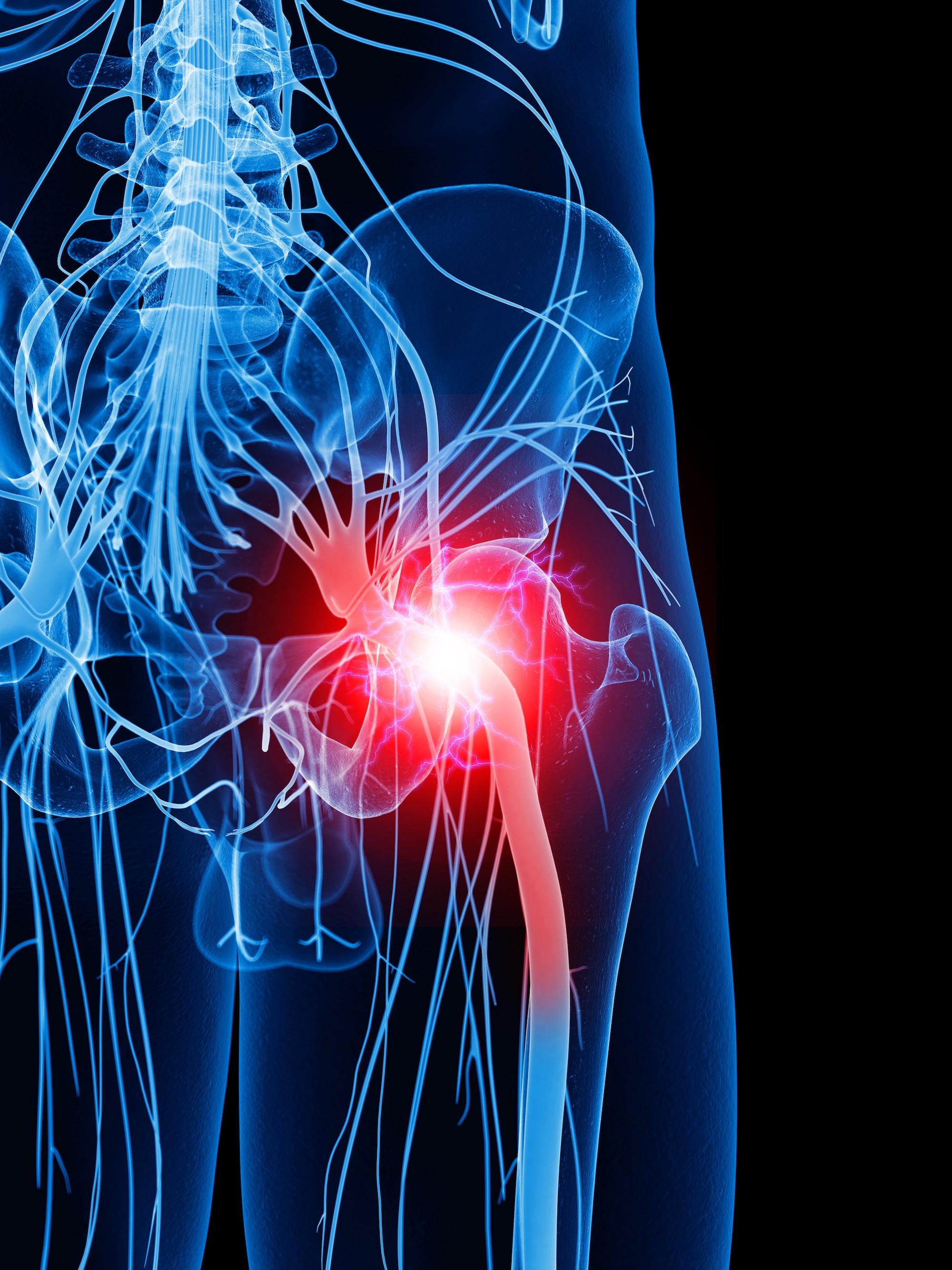 Exercises to relieve sciatic pain - Adele's Pilates
